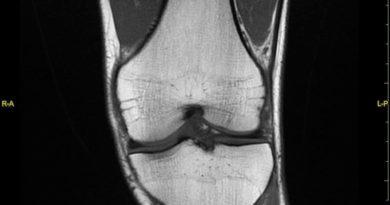 risonanza magnetica ginocchio sx