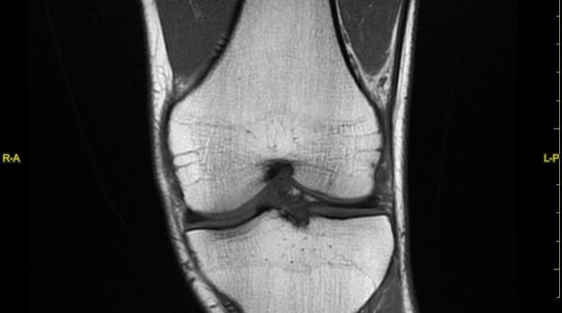 Sindrome Femoro Rotulea: esiti risonanza magnetica
