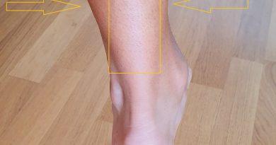 tendinite tendine d'Achille